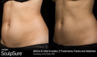 Before and After Sculpsure 25 minute, non-invasive fat removal treatment