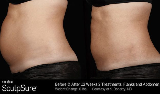 SculpSure before after 25 minute, non-invasive fat removal treatment