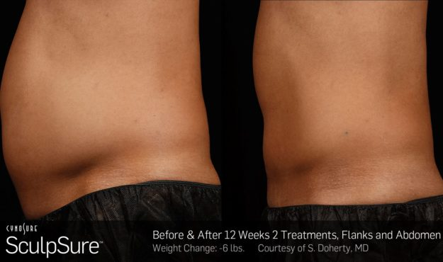 25 minute, non-invasive fat removal treatment Before and After Sculpsure