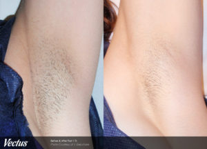 Laser Hair Removal Before and After Underarms 1 Treatment