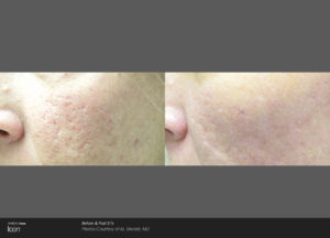 Icon Treatment Before After Acne Scar After 3 Treatments
